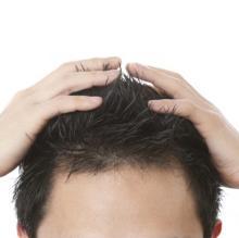 本当にごめんなさい! ぶっちゃけ、男性の白髪と薄毛、どっちが苦手?