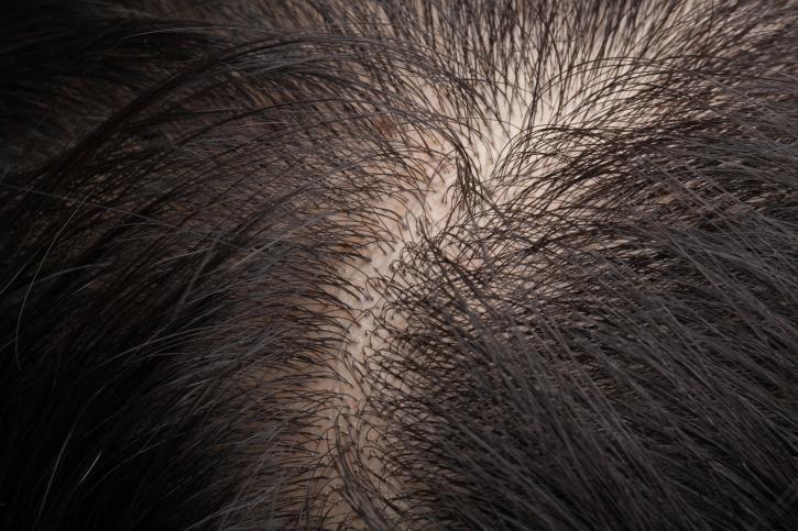 獣神サンダー・ライガーは薄毛だった。付け毛を外した姿を初公開