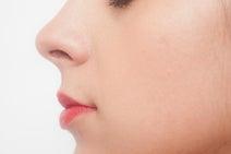 アンミカ 子ども時代に鼻を骨折 貧乏で病院に行かずに治した