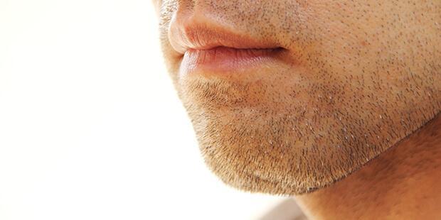 美意識高い系男子!? 「髭脱毛」をする男性急増のワケとは?