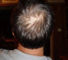 理論上は永続的発毛が可能になる「17型コラーゲン」に興奮