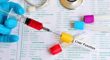 沈黙の臓器肝臓…血液検査で何がわかる?