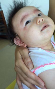 東尾理子 娘の肌が急変しハワイで救急外来「力抜けた」