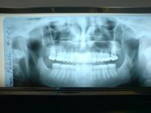 なんと心臓病にも?「神経を抜いた歯」がある人が注意すべき病気とは