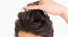 頭頂部の薄毛を放置しているとハゲへ近づく! 早めの頭皮対策を