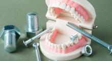 抜歯したままの状態でインプラント治療は受けられる?