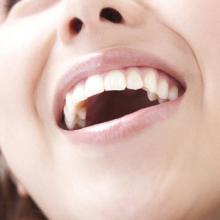 口臭や感染症罹患の原因にもなる口呼吸のデメリットを歯科医が解説