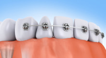 歯の矯正はどれくらいの期間で終わる?