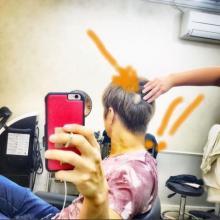 GACKT、円形脱毛症の写真を公開「どんな嫌なことも必ず笑い話になる」
