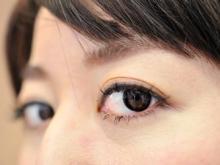 目の下の茶くま・青くまの原因と解消法
