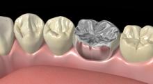 銀歯を白くするのは保険適用内でできる?