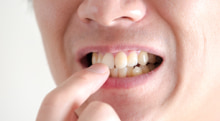 歯の矯正にはどんな種類があるの?