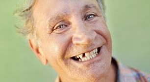 歯の欠損が多い時、どうやって治療や対策をするの?