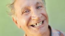 """歯の<span class=""""hlword1"""">欠損</span>が多い時、どうやって治療や対策をするの?"""