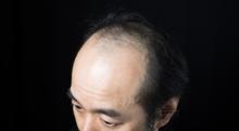 なにが抜け毛の原因になる? 脱毛症の種類と抜け毛予防法