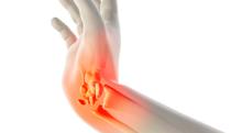 骨折していた手首が曲げづらい…治すことはできる?