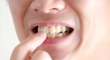 差し歯の出来が悪い! タダでやり直してもらえますか?