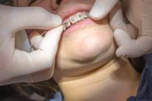 理想の歯並びを手に入れるための矯正方法を医師に聞く