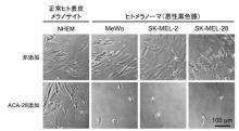 近大、メラノーマの増殖だけを抑制する化合物開発 がん細胞のみを標的にした抗がん剤開発に期待
