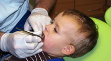 前歯が虫歯の3歳児、フッ素を塗布して様子を見るだけで大丈夫なの?