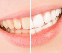 歯の着色汚れをキレイに!原因とステイン除去から予防法まで徹底解説