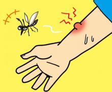 なぜ、蚊に刺されるとかゆくなるのか?